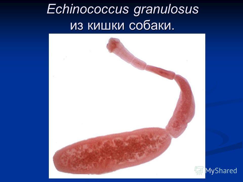 паразиты в мозге человека симптомы