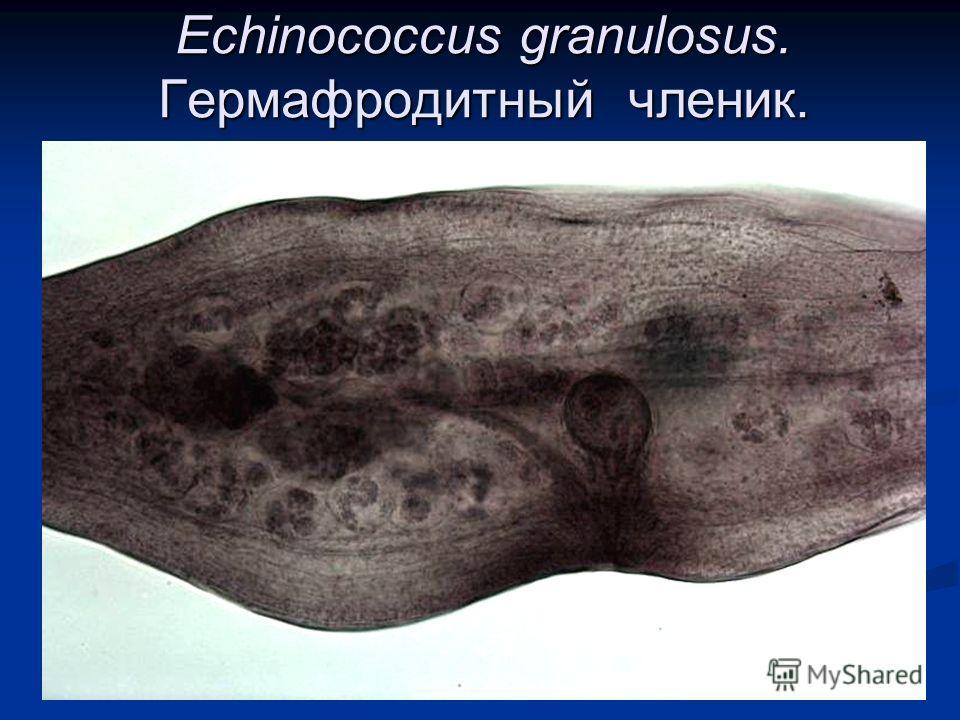 Echinococcus granulosus. Гермафродитный членик.