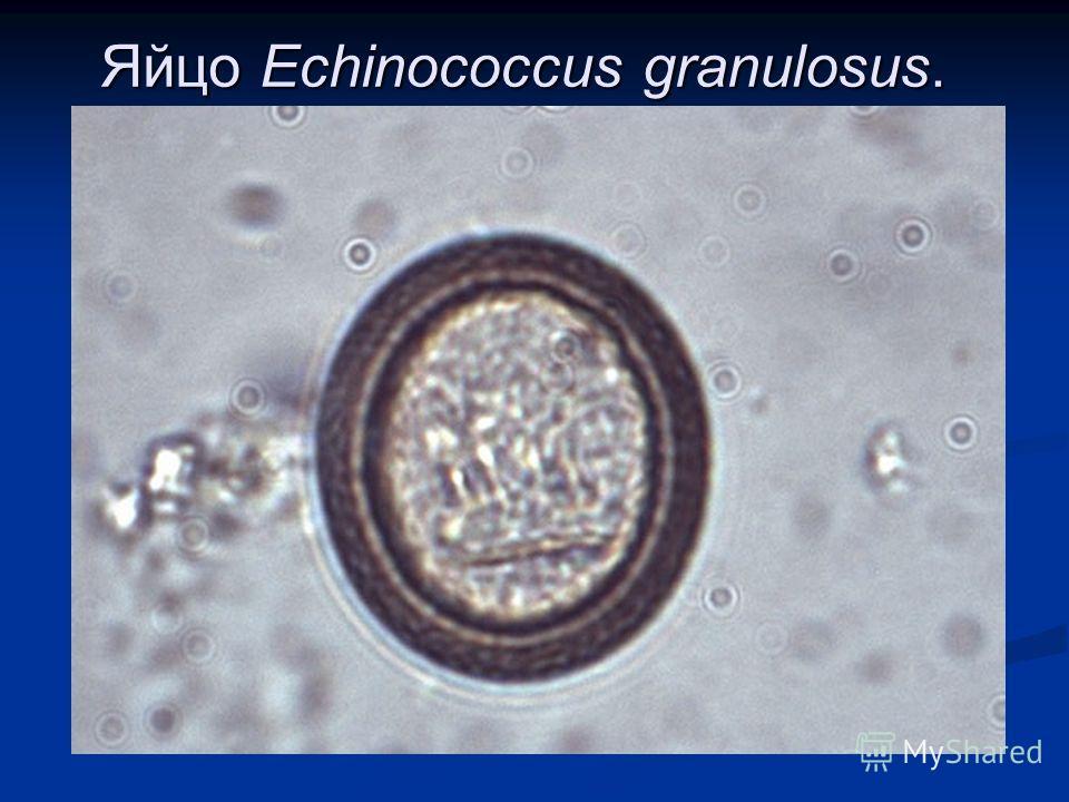 Яйцо Echinococcus granulosus.
