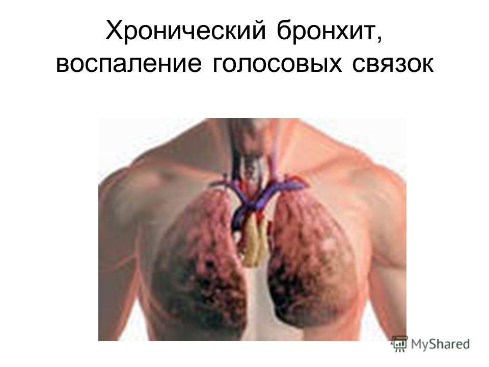 Хронический бронхит, воспаление голосовых связок