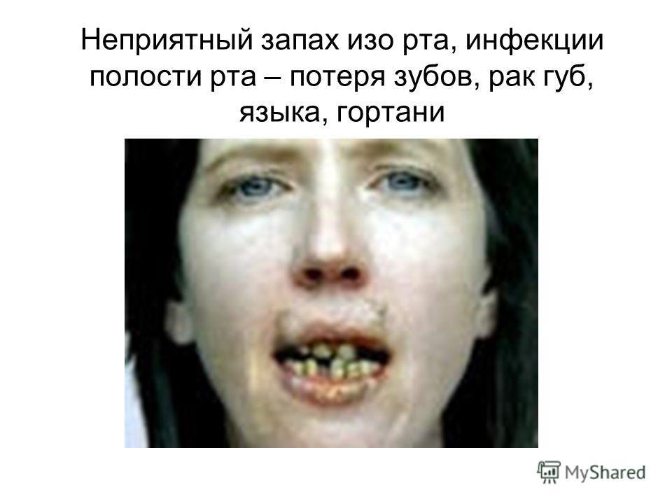 Неприятный запах изо рта, инфекции полости рта – потеря зубов, рак губ, языка, гортани