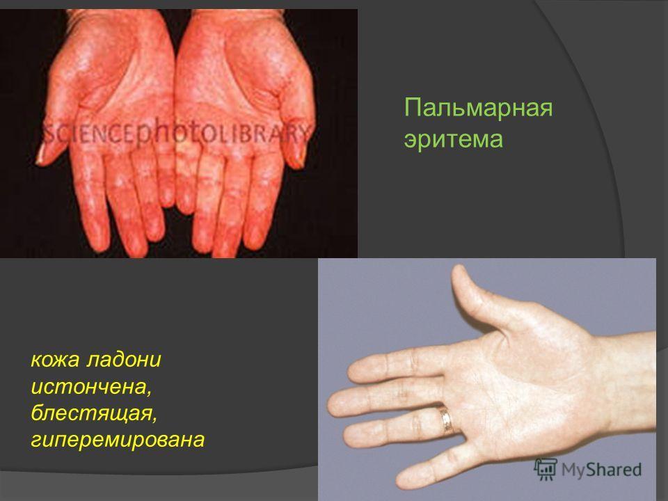 Пальмарная эритема кожа ладони истончена, блестящая, гиперемирована