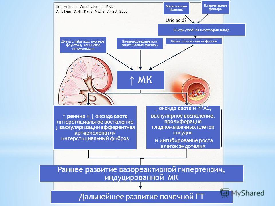 Uric Acid and Cardiovascular Risk D. I. Feig, D.-H. Kang, N Engl J Med. 2008 Внешнесредовые или генетические факторы Диета с избытком пуринов, фруктозы, свинцовая интоксикация Малое количество нефронов МК Раннее развитие вазореактивной гипертензии, и