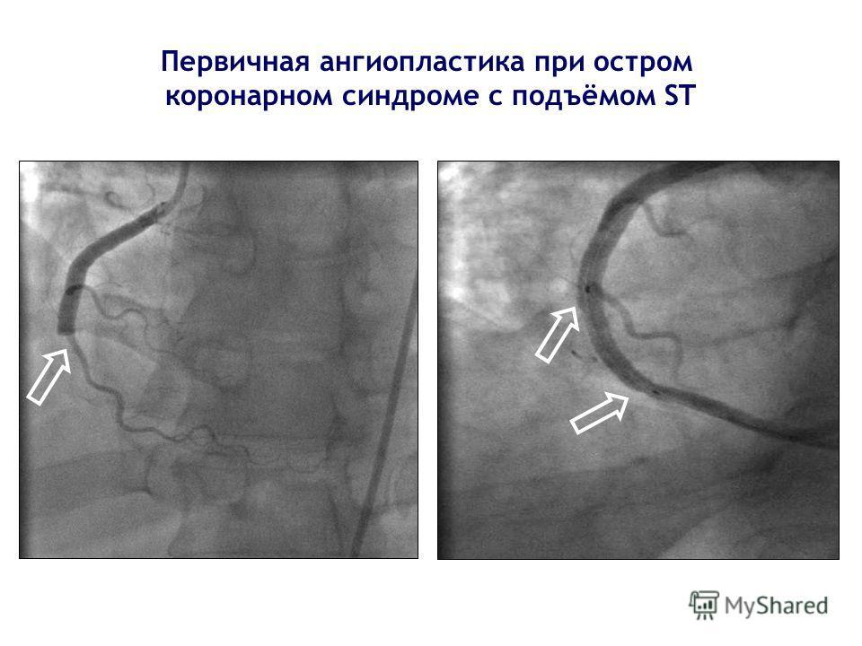 Первичная ангиопластика при остром коронарном синдроме с подъёмом ST