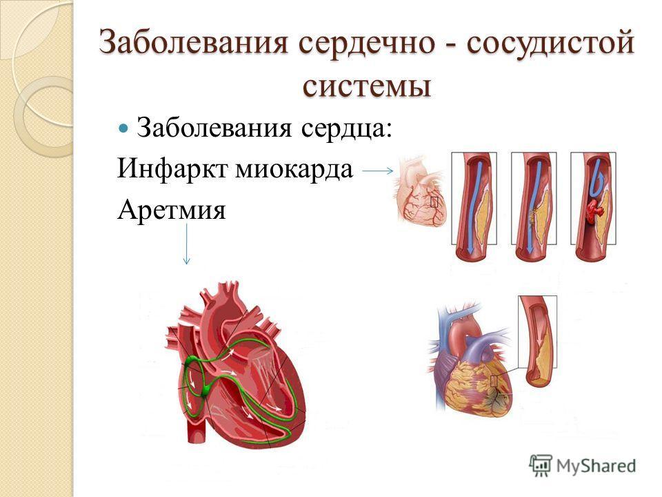 Заболевания сердечно - сосудистой системы Заболевания сердца: Инфаркт миокарда Аретмия
