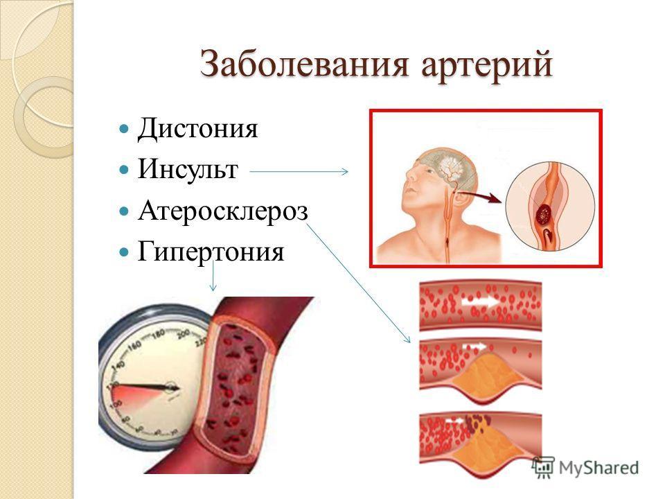 Заболевания артерий Дистония Инсульт Атеросклероз Гипертония