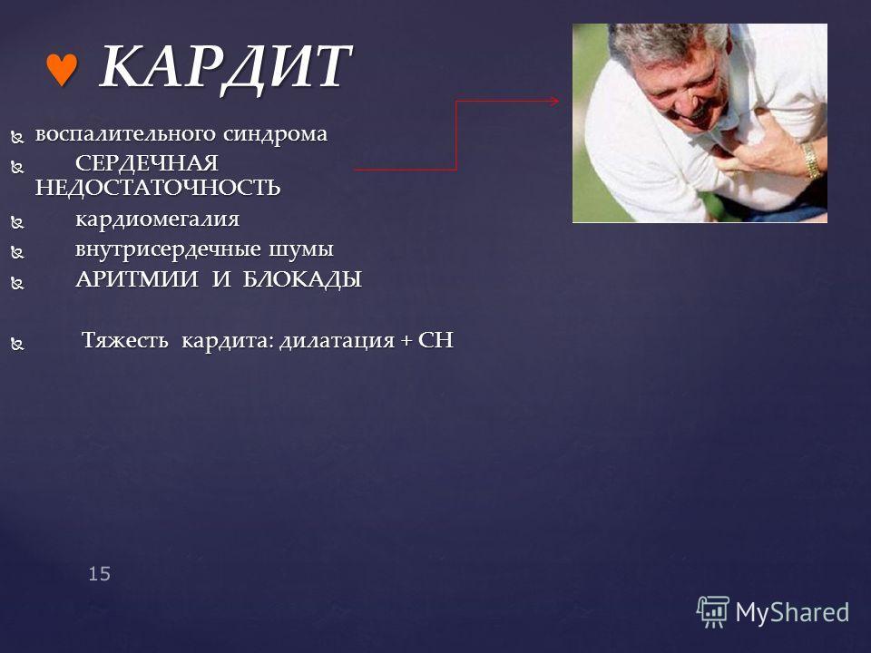 воспалительного синдрома воспалительного синдрома СЕРДЕЧНАЯ НЕДОСТАТОЧНОСТЬ СЕРДЕЧНАЯ НЕДОСТАТОЧНОСТЬ кардиомегалия кардиомегалия внутрисердечные шумы внутрисердечные шумы АРИТМИИ И БЛОКАДЫ АРИТМИИ И БЛОКАДЫ Тяжесть кардита: дилатация + СН Тяжесть ка