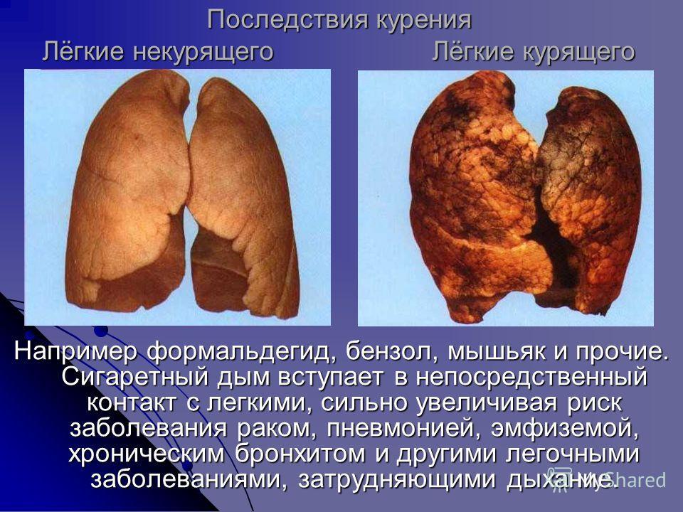 Последствия курения Лёгкие некурящего Лёгкие курящего Например формальдегид, бензол, мышьяк и прочие. Сигаретный дым вступает в непосредственный контакт с легкими, сильно увеличивая риск заболевания раком, пневмонией, эмфиземой, хроническим бронхитом
