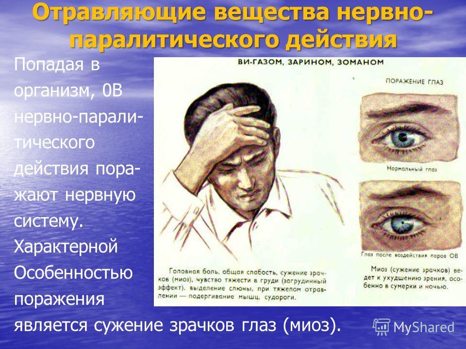 Отравляющие вещества нервно- паралитического действия Попадая в организм, 0В нервно-парали- тического действия пора- жают нервную систему. Характерной Особенностью поражения является сужение зрачков глаз (миоз).