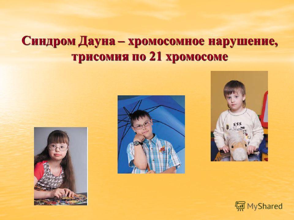 Синдром Дауна – хромосомное нарушение, трисомия по 21 хромосоме