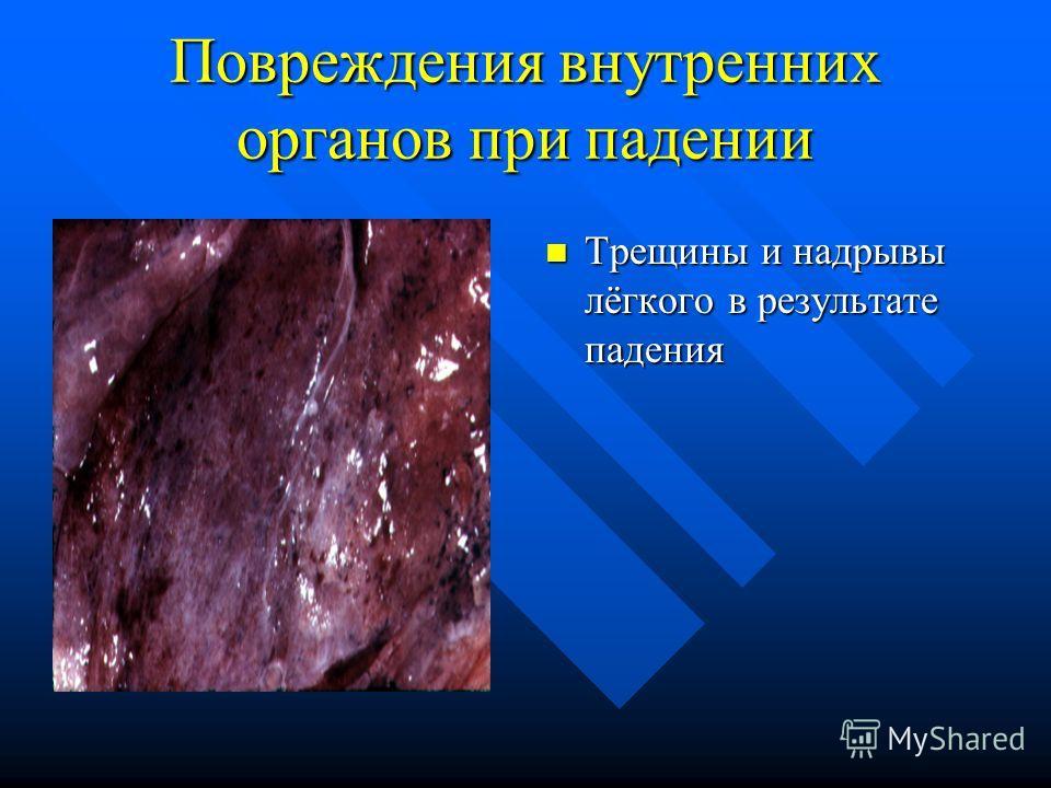 Повреждения внутренних органов при падении Трещины и надрывы лёгкого в результате падения