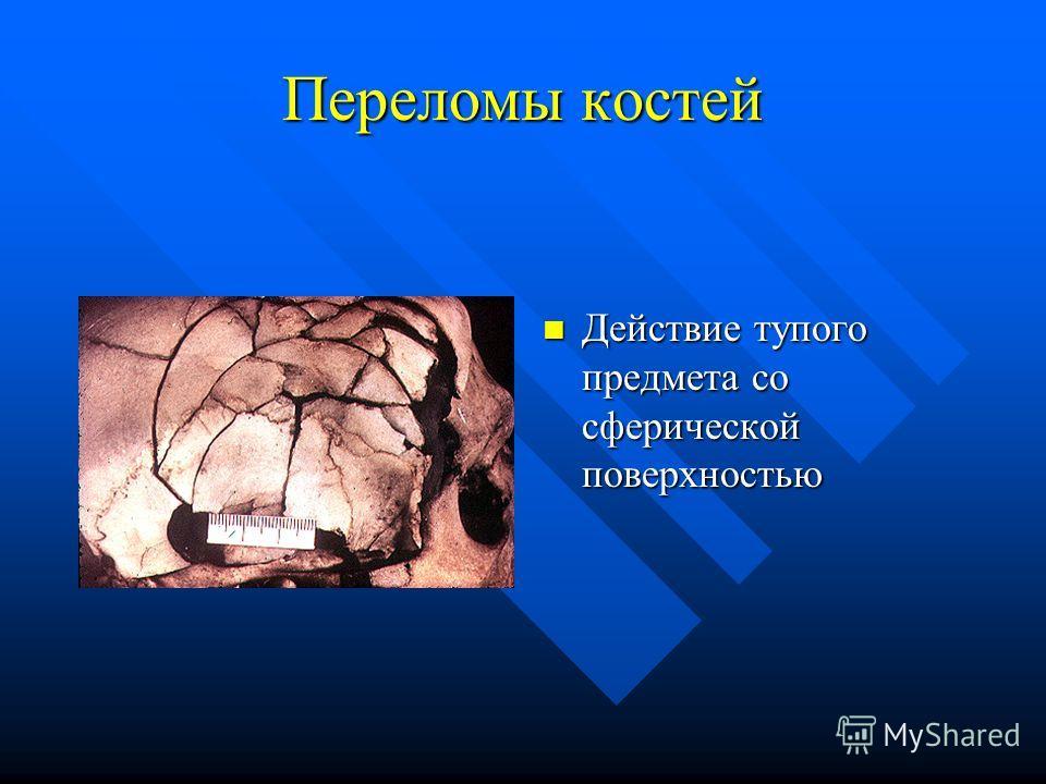 Переломы костей Действие тупого предмета со сферической поверхностью