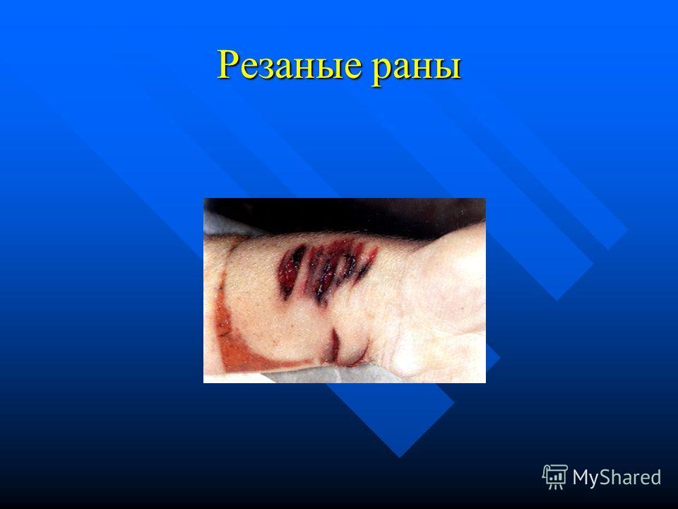Резаные раны