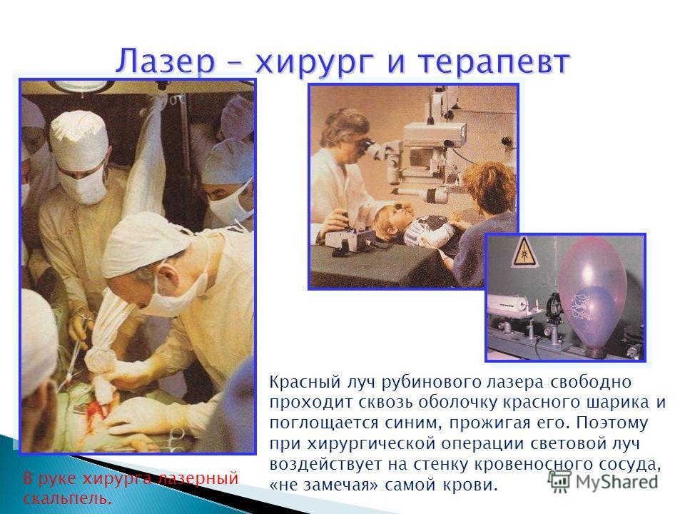 В руке хирурга лазерный скальпель. Красный луч рубинового лазера свободно проходит сквозь оболочку красного шарика и поглощается синим, прожигая его. Поэтому при хирургической операции световой луч воздействует на стенку кровеносного сосуда, «не заме