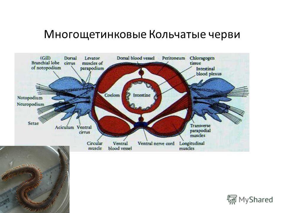Многощетинковые Кольчатые черви