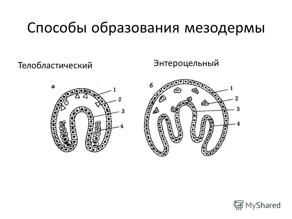 Способы образования мезодермы Телобластический Энтероцельный