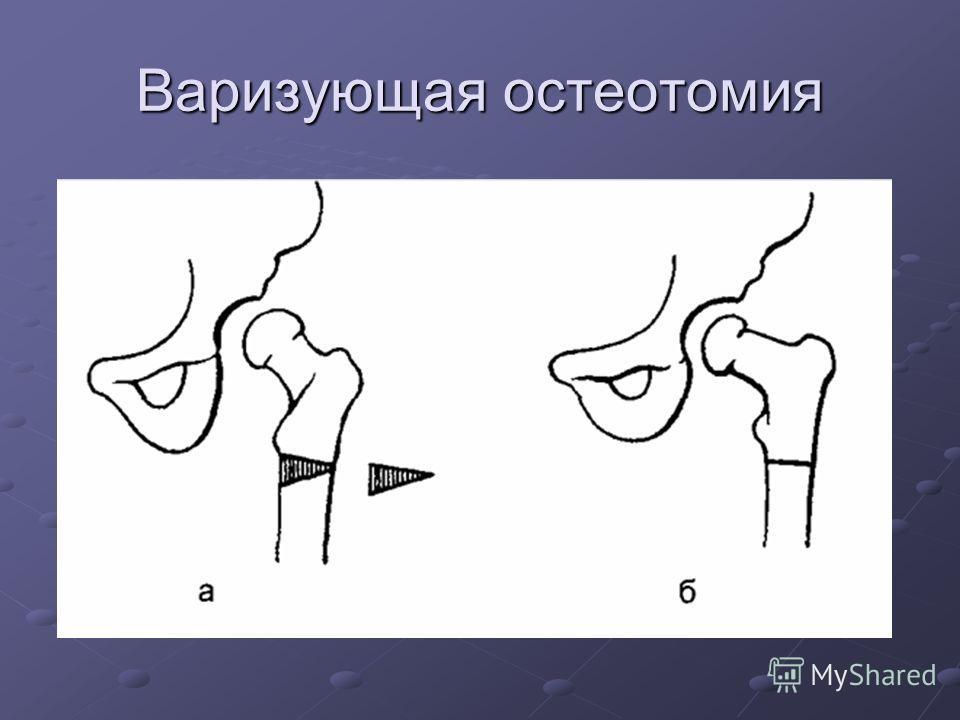 Варизующая остеотомия