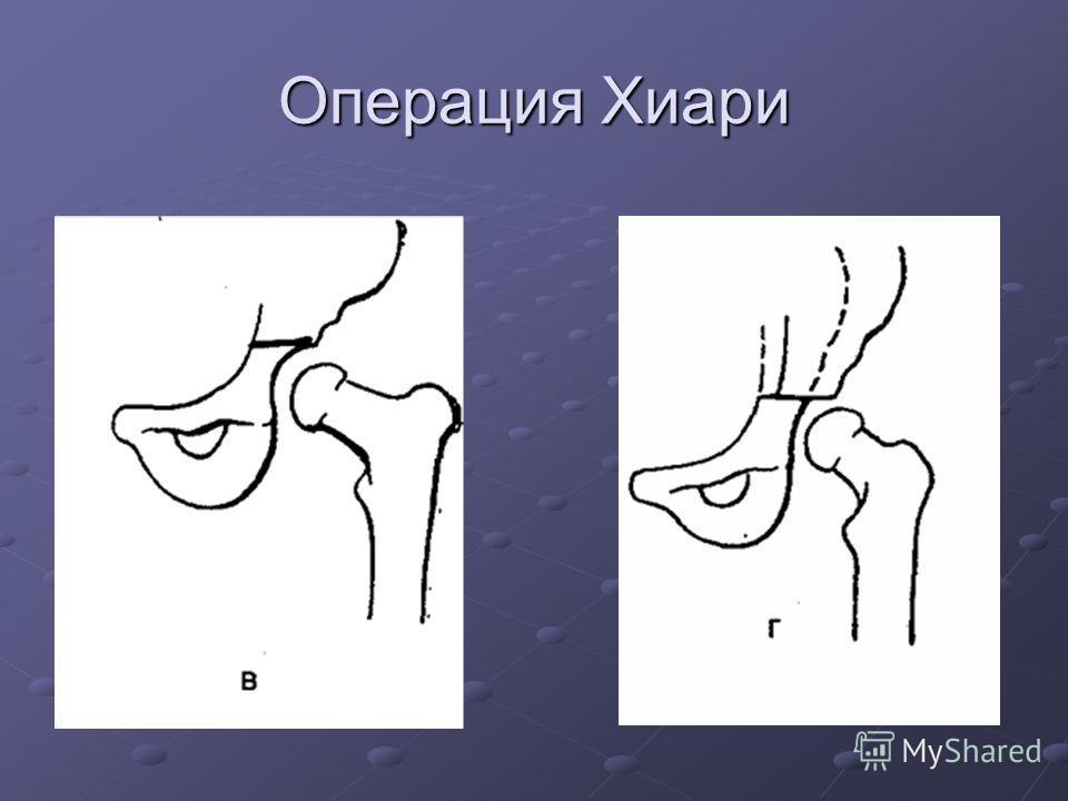 Операция Хиари