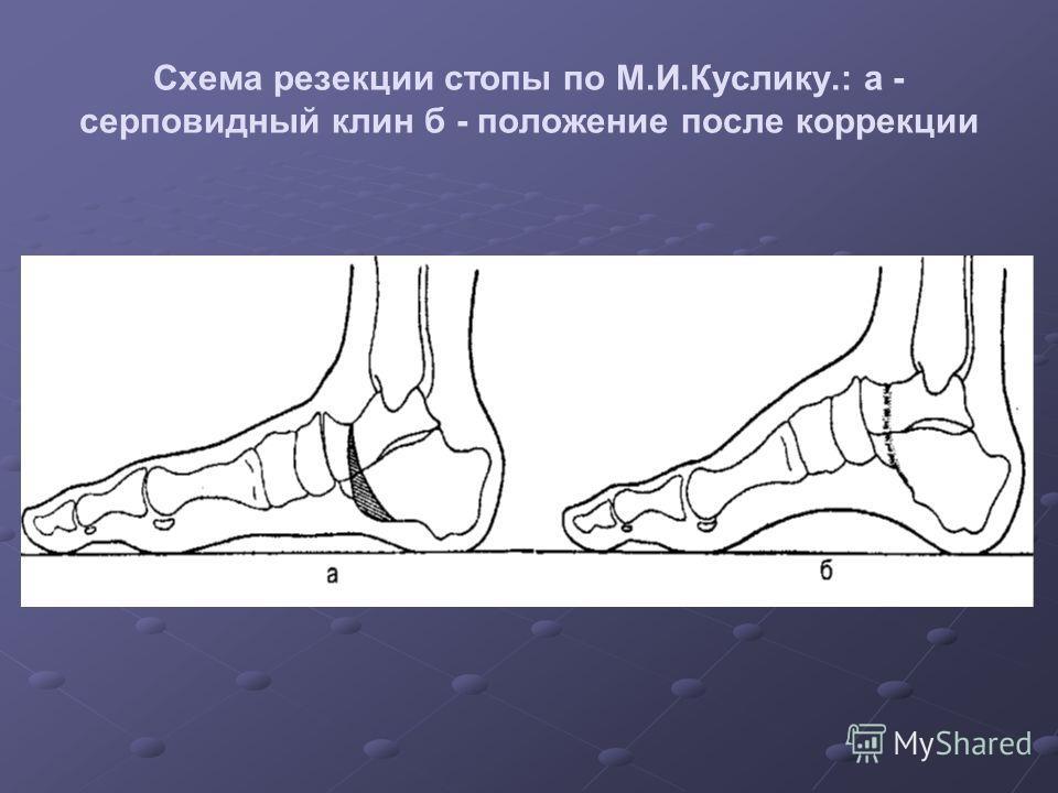 Схема резекции стопы по М.И.Куслику.: а - серповидный клин б - положение после коррекции