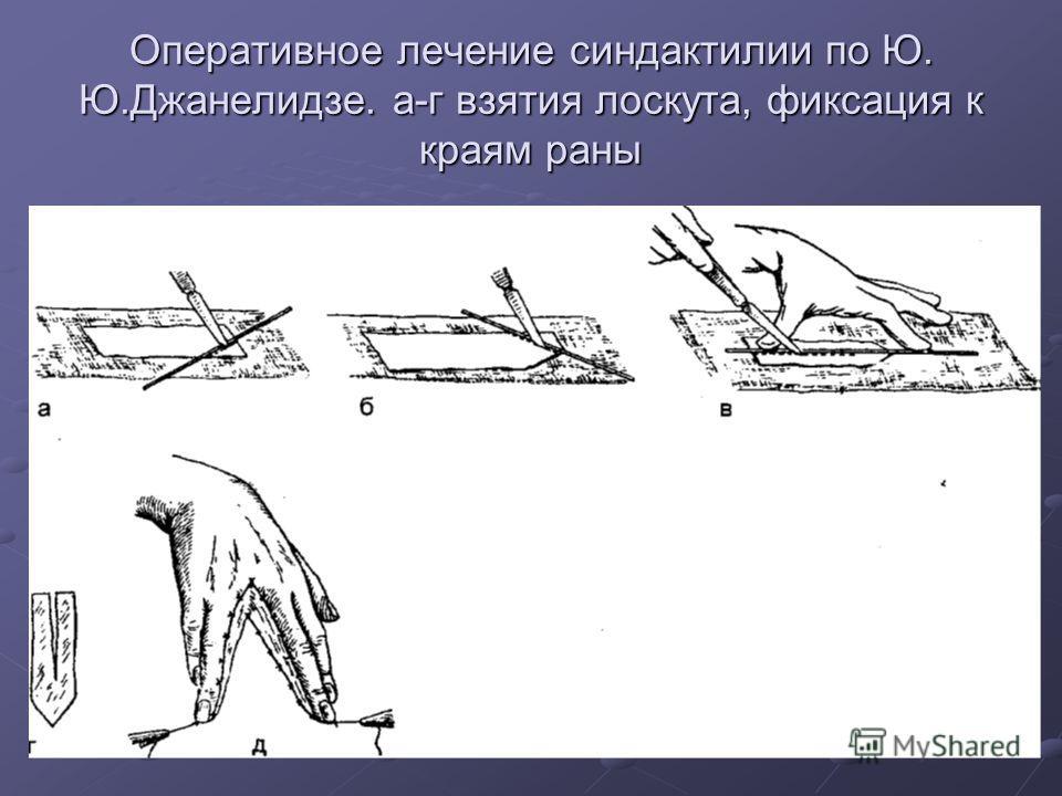 Оперативное лечение синдактилии по Ю. Ю.Джанелидзе. а-г взятия лоскута, фиксация к краям раны