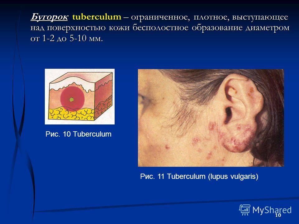 10 Бугорок tuberculum – ограниченное, плотное, выступающее над поверхностью кожи бесполостное образование диаметром от 1-2 до 5-10 мм. Рис. 11 Tuberculum (lupus vulgaris) Рис. 10 Tuberculum