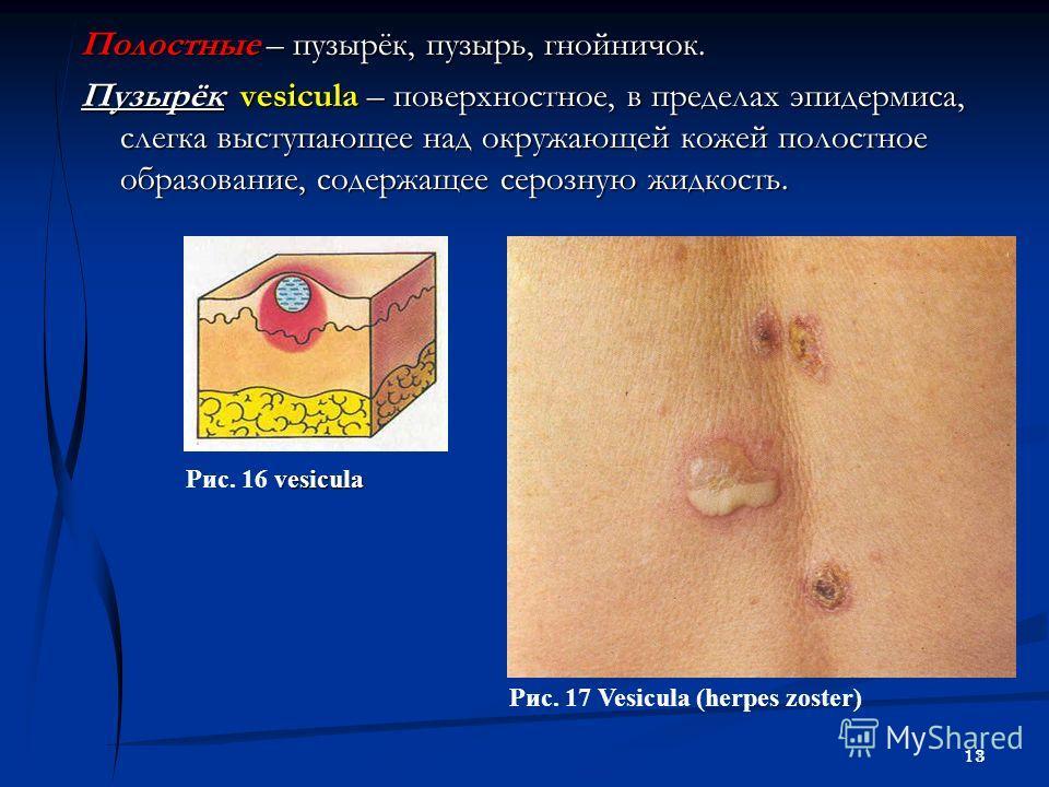 13 Полостные – пузырёк, пузырь, гнойничок. Пузырёк vesicula – поверхностное, в пределах эпидермиса, слегка выступающее над окружающей кожей полостное образование, содержащее серозную жидкость. vesicula Рис. 16 vesicula Рис. 17 Vesicula (herpes zoster