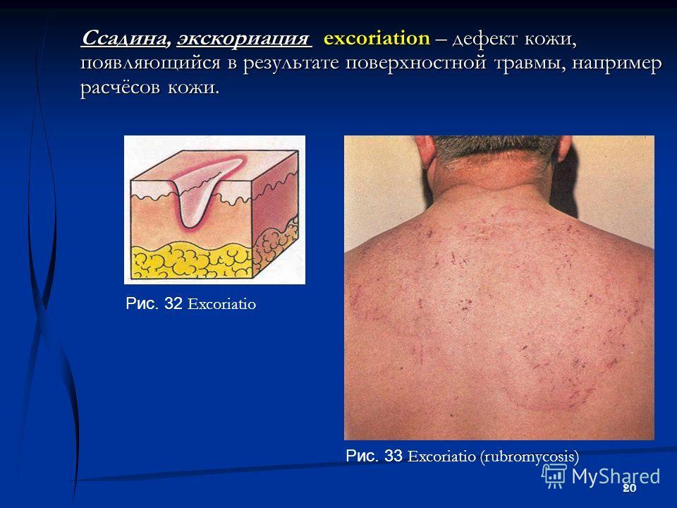 20 Ссадина, экскориация excoriation – дефект кожи, появляющийся в результате поверхностной травмы, например расчёсов кожи. Рис. 33 Excoriatio (rubromycosis) Рис. 32 Excoriatio