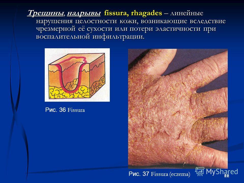 22 Трещины, надрывы fissura, rhagades – линейные нарушения целостности кожи, возникающие вследствие чрезмерной её сухости или потери эластичности при воспалительной инфильтрации. Рис. 36 Fissura Рис. 37 Fissura (eczema)