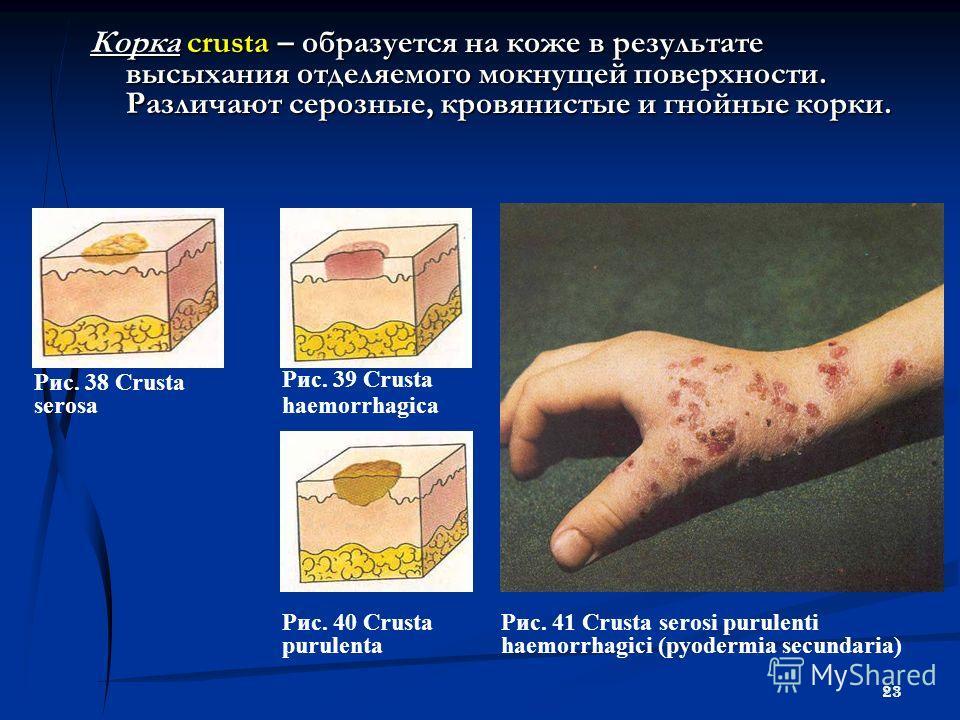 23 Корка сrusta – образуется на коже в результате высыхания отделяемого мокнущей поверхности. Различают серозные, кровянистые и гнойные корки. Рис. 38 Crusta serosa Рис. 39 Crusta haemorrhagica Рис. 40 Crusta purulenta Рис. 41 Crusta serosi purulenti