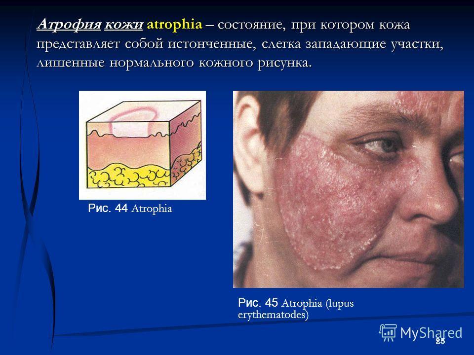 25 Атрофия кожи atrophia – состояние, при котором кожа представляет собой истонченные, слегка западающие участки, лишенные нормального кожного рисунка. Рис. 44 Atrophia Рис. 45 Atrophia (lupus erythematodes)