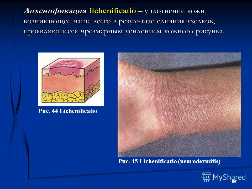 26 Лихенификация lichenificatio – уплотнение кожи, возникающее чаще всего в результате слияния узелков, проявляющееся чрезмерным усилением кожного рисунка. Рис. 44 Lichenificatio Рис. 45 Lichenificatio (neurodermitis)