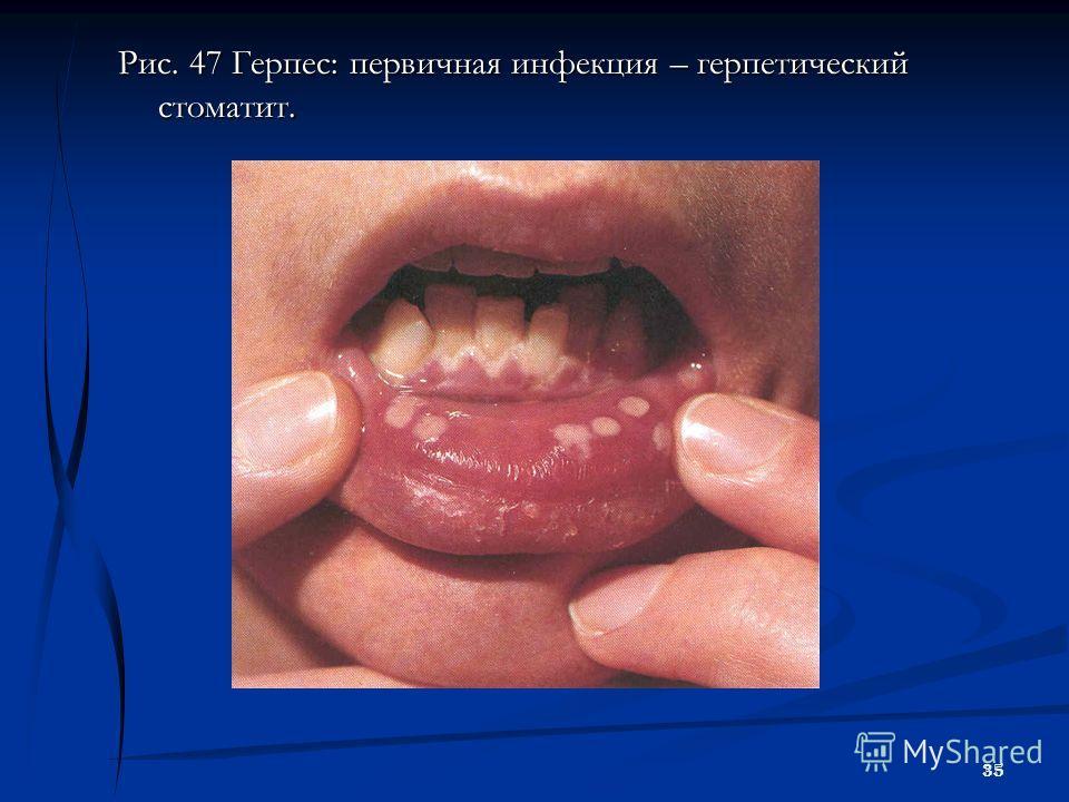 35 Рис. 47 Герпес: первичная инфекция – герпетический стоматит.