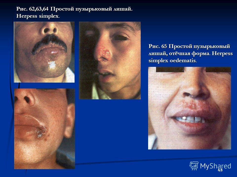 43 Рис. 62,63,64 Простой пузырьковый лишай. Herpess simplex. Рис. 65 Простой пузырьковый лишай, отёчная форма. Herpess simplex oedematis.