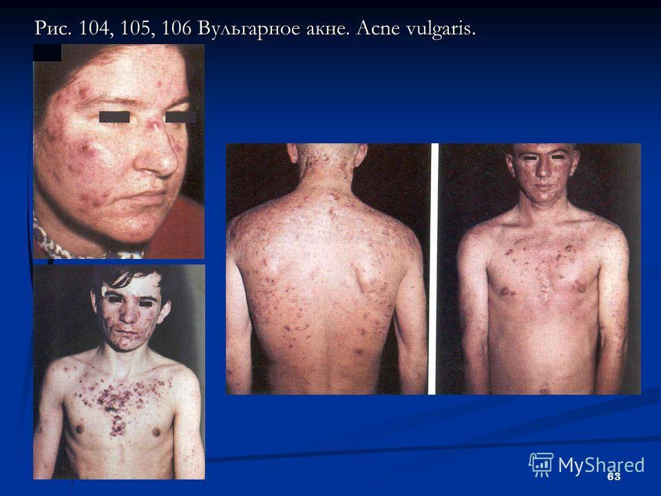 63 Рис. 104, 105, 106 Вульгарное акне. Acne vulgaris.