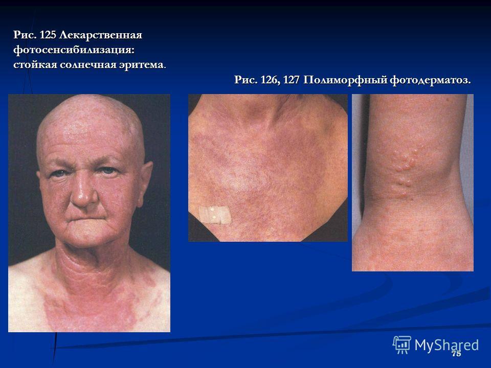 75 Рис. 125 Лекарственная фотосенсибилизация: стойкая солнечная эритема. Рис. 126, 127 Полиморфный фотодерматоз.