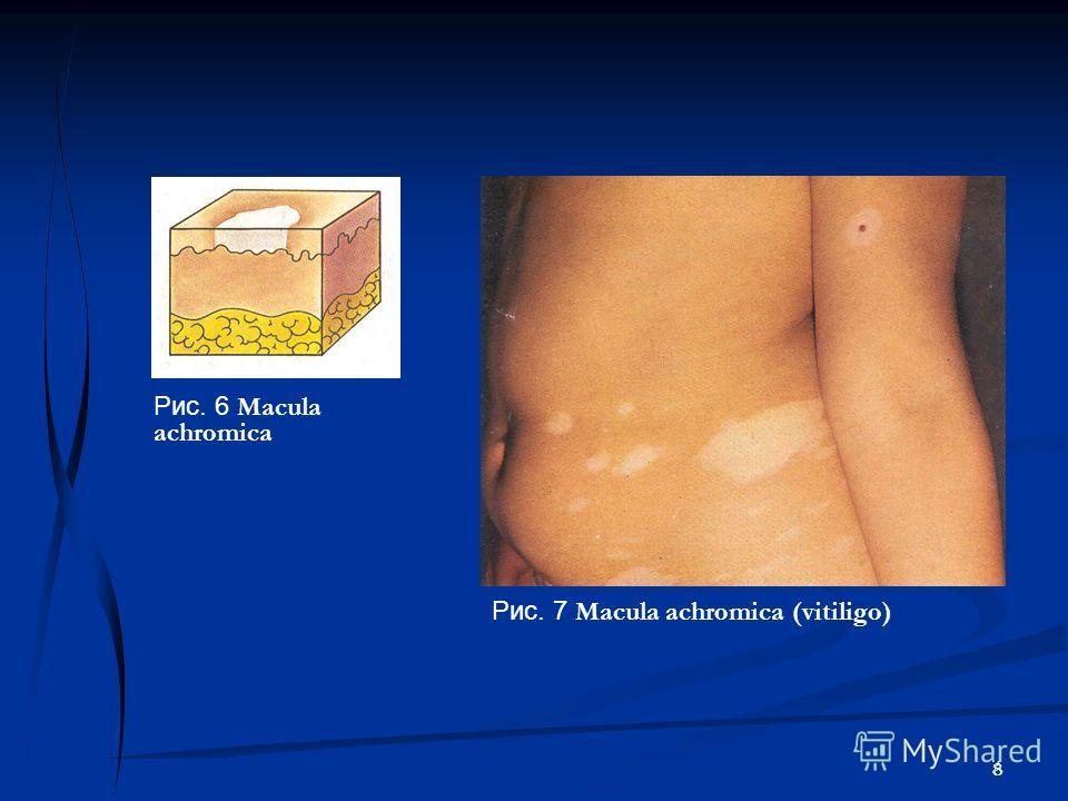 8 Рис. 7 Macula achromica (vitiligo) Рис. 6 Macula achromica