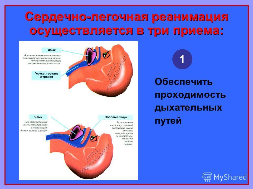 Сердечно-легочная реанимация осуществляется в три приема: Обеспечить проходимость дыхательных путей 1