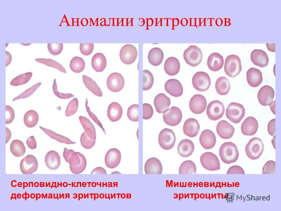 Аномалии эритроцитов Серповидно-клеточная деформация эритроцитов Мишеневидные эритроциты