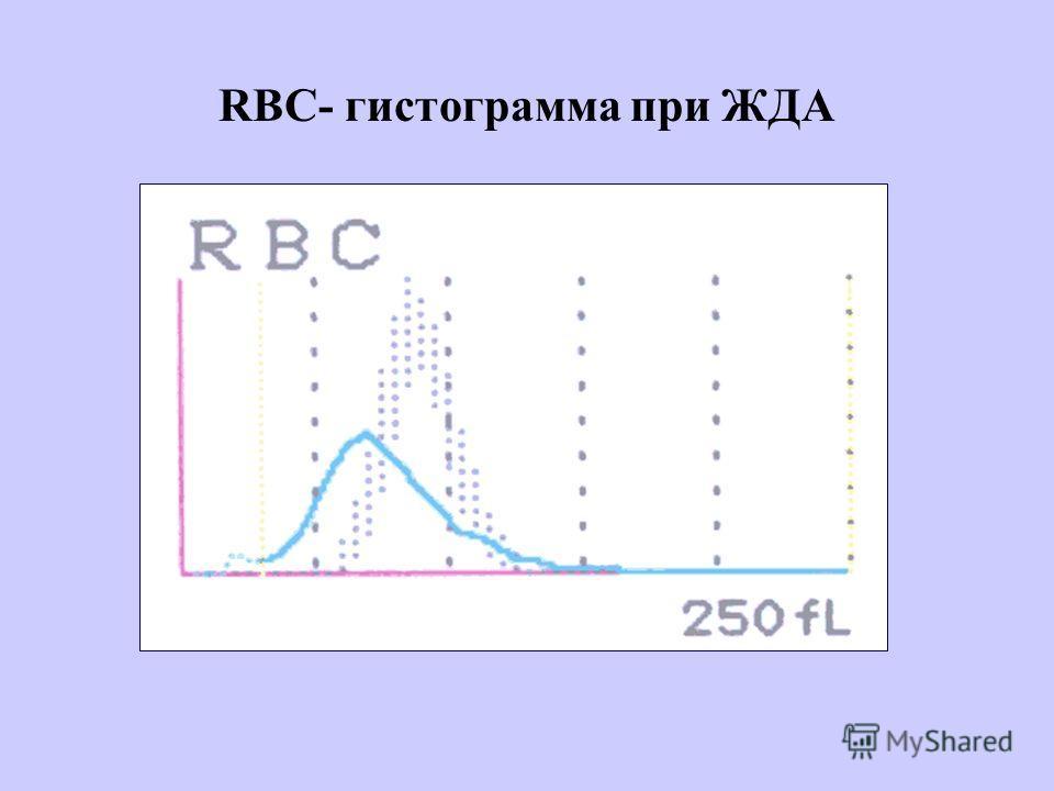 RBC- гистограмма при ЖДА