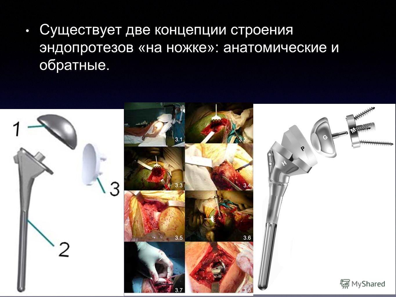 Существует две концепции строения эндопротезов «на ножке»: анатомические и обратные.