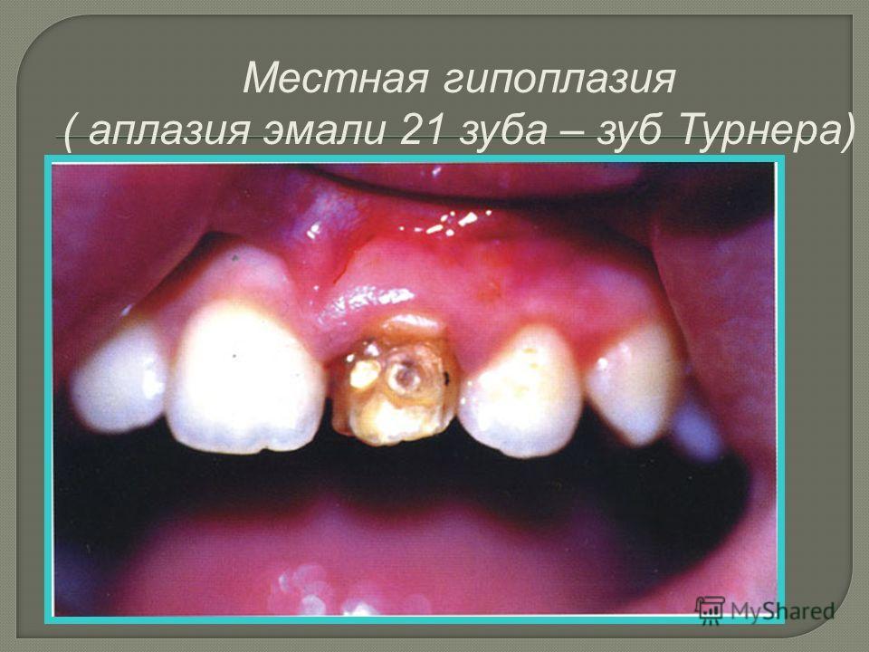 Местная гипоплазия ( аплазия эмали 21 зуба – зуб Турнера)