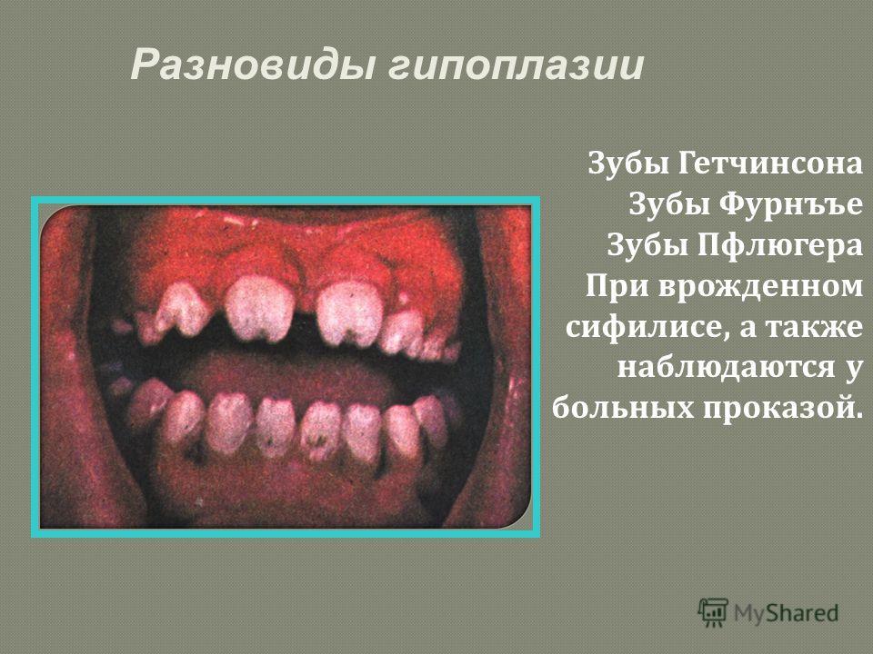 Зубы Гетчинсона Зубы Фурнъъе Зубы Пфлюгера При врожденном сифилисе, а также наблюдаются у больных проказой. Разновиды гипоплазии