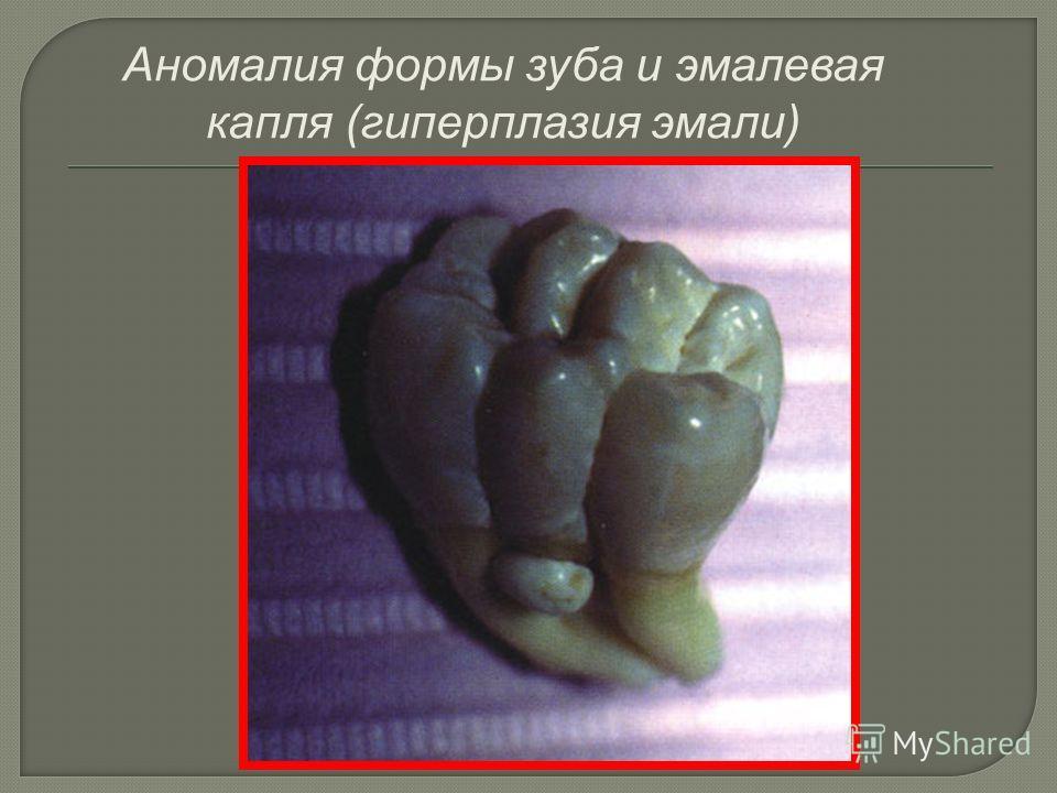 Аномалия формы зуба и эмалевая капля (гиперплазия эмали)