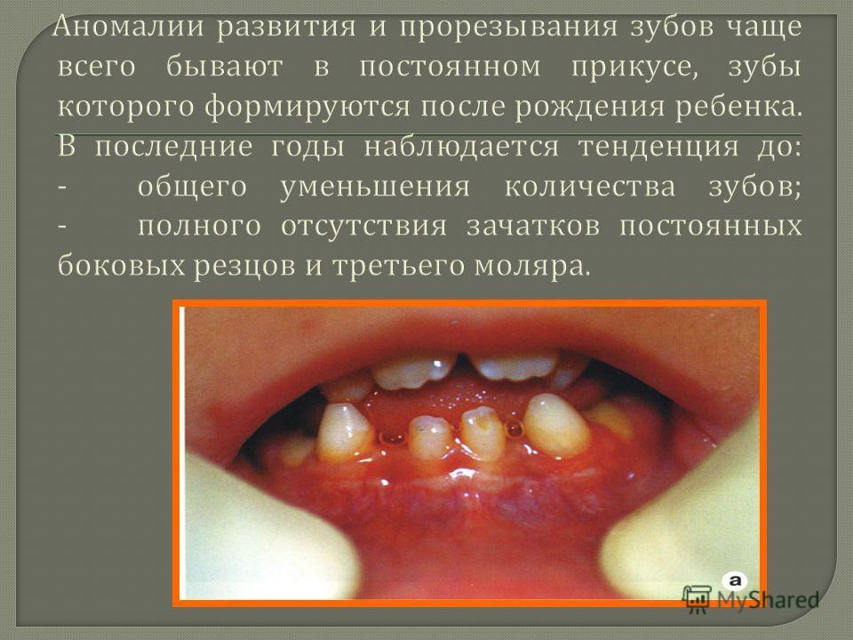 Аномалии развития и прорезывания зубов чаще всего бывают в постоянном прикусе, зубы которого формируются после рождения ребенка. В последние годы наблюдается тенденция до : - общего уменьшения количества зубов ; - полного отсутствия зачатков постоянн