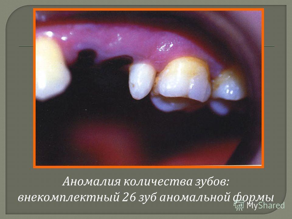 Аномалия количества зубов : внекомплектный 26 зуб аномальной формы