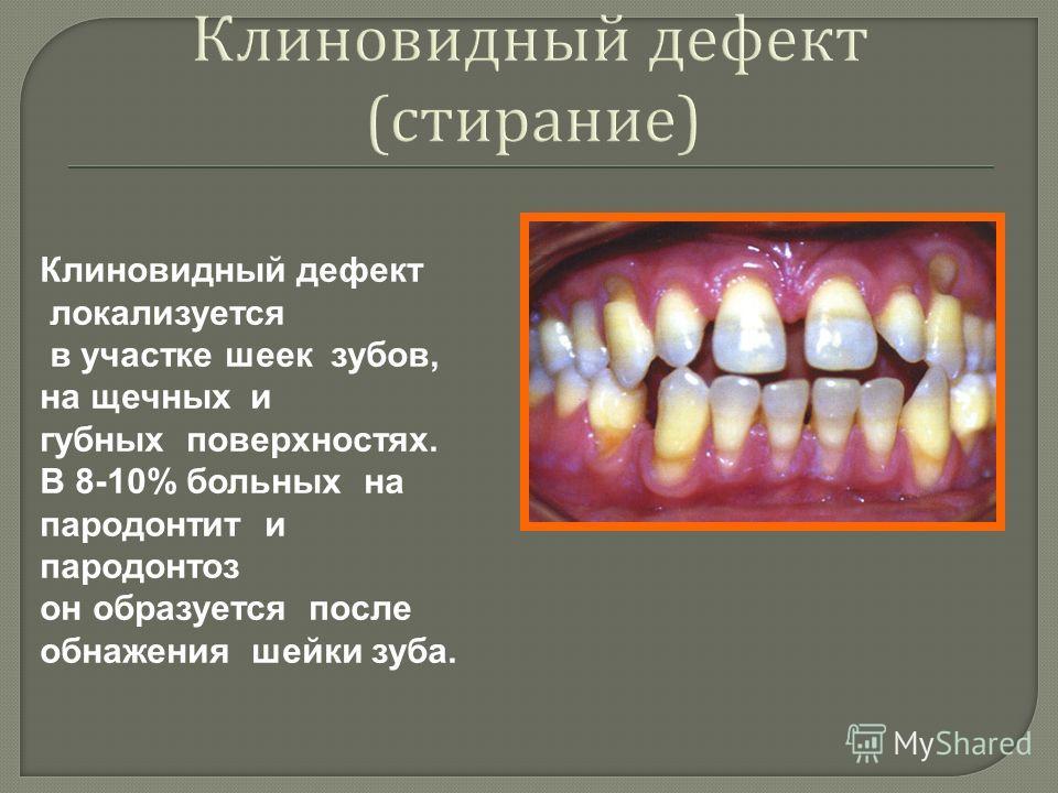Клиновидный дефект ( стирание ) Клиновидный дефект локализуется в участке шеек зубов, на щечных и губных поверхностях. В 8-10% больных на пародонтит и пародонтоз он образуется после обнажения шейки зуба.