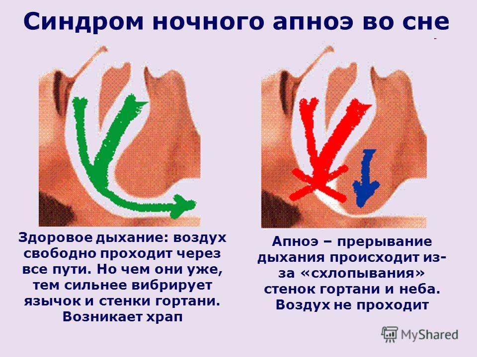Апноэ – прерывание дыхания происходит из- за «схлопывания» стенок гортани и неба. Воздух не проходит Синдром ночного апноэ во сне Здоровое дыхание: воздух свободно проходит через все пути. Но чем они уже, тем сильнее вибрирует язычок и стенки гортани