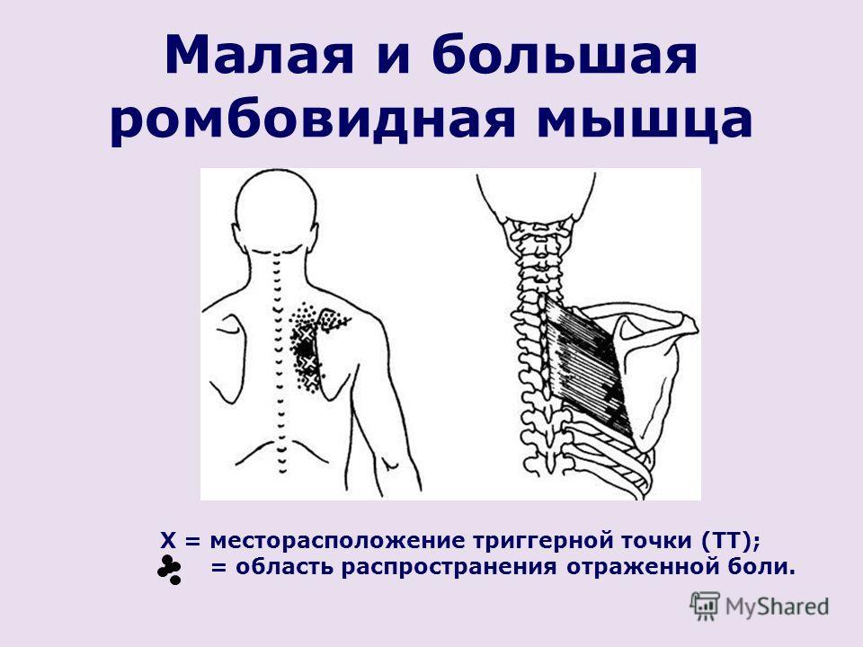 Малая и большая ромбовидная мышца X = месторасположение триггерной точки (ТТ); = область распространения отраженной боли.