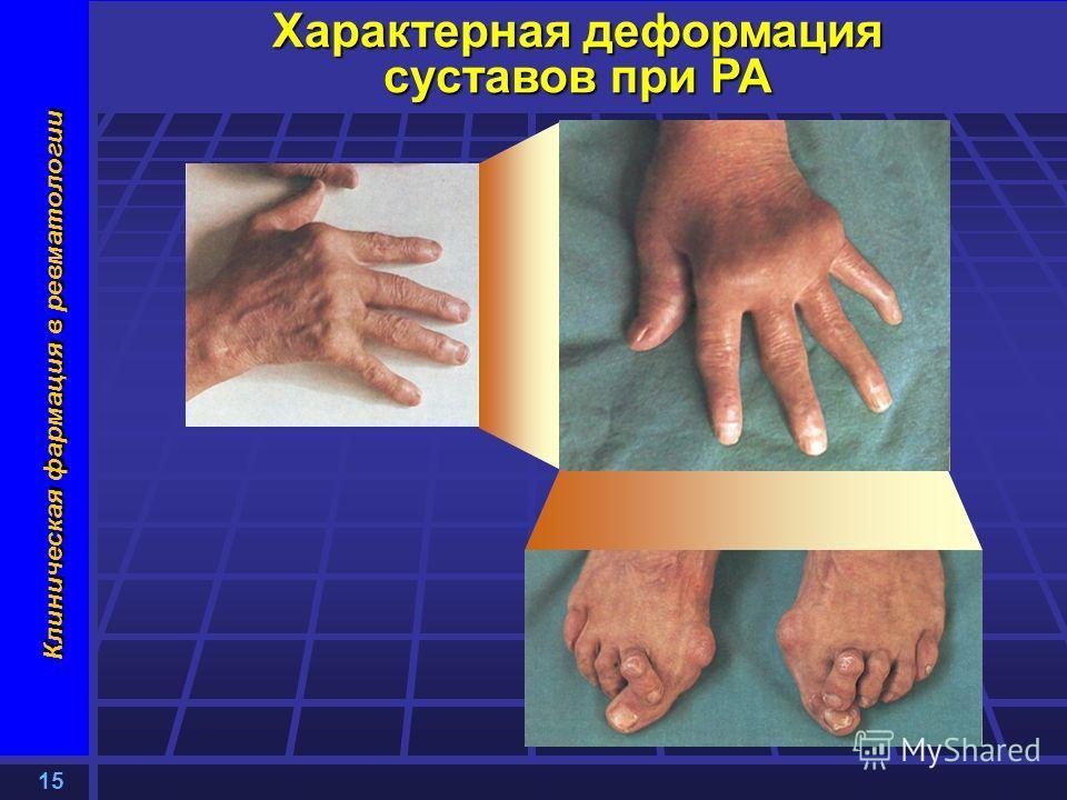 15 Клиническая фармация в ревматологии Характерная деформация суставов при РА