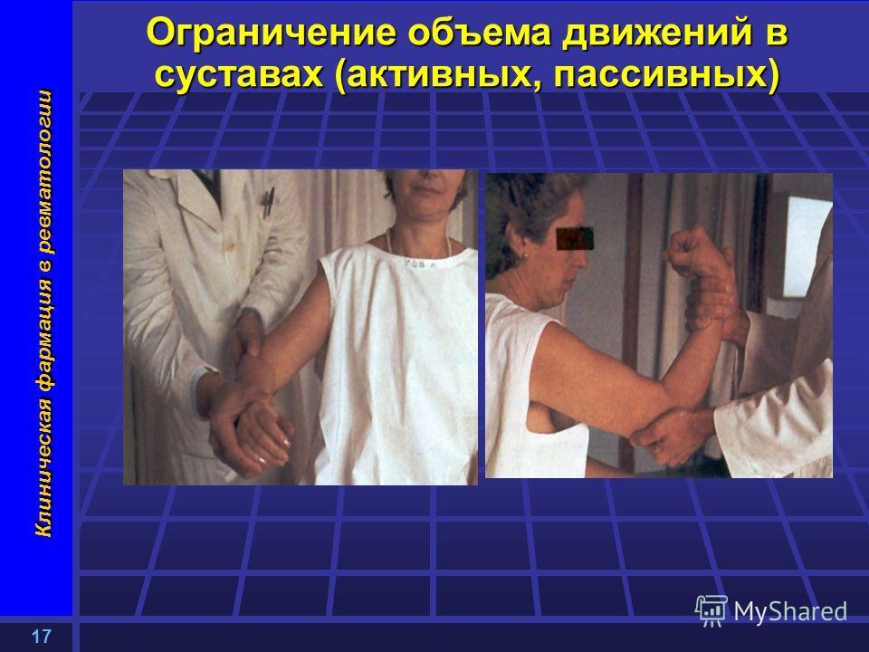 17 Клиническая фармация в ревматологии Ограничение объема движений в суставах (активных, пассивных)